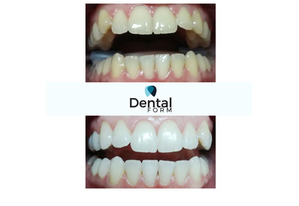 clareamento nos dentes antes e depois