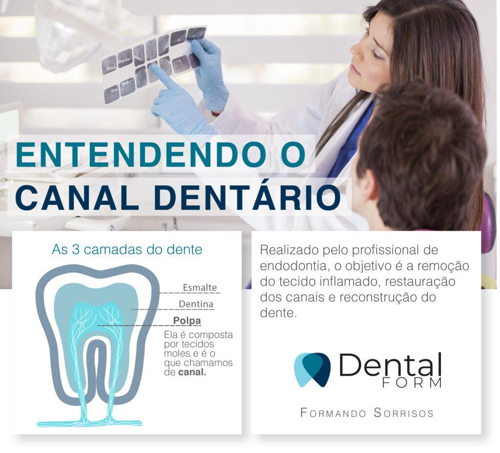 o que é o tratamento de canal dentário