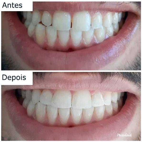 fechamento de diastema com resina antes e depois