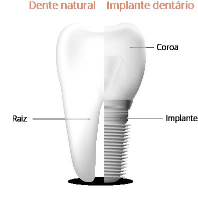 como funciona o implante dentário
